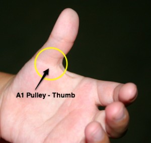 left thumb, palm side - location of A1 pulley