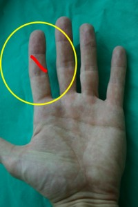 cut index finger palm anatomy