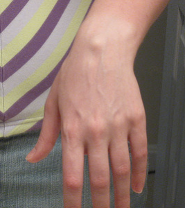 dorsal wrist ganglion