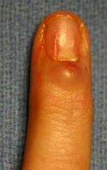 picture of finger joint ganglion