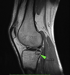 MRI scan of knee