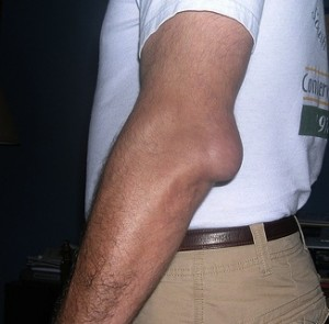 left elbow olecranon bursitis