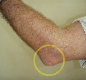 example of Popeye elbow