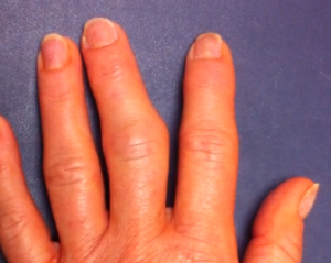 picture of PIP joint finger arthritis